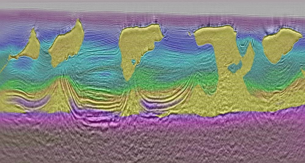 DMFWI-Imaging-eg-1-SML